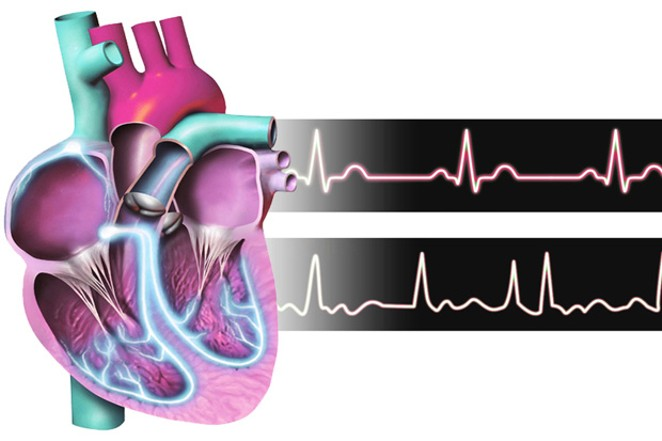 """The heart """"remodeling"""" itself to be more efficient can be a good and bad thing, according to a local doctor. - WIKIMEDIA COMMONS"""