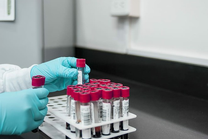 The U.S has an extreme shortage of testing capacity for COVID-19, but new tests on the way from China could detect coronavirus antibodies and determine immunity. - WALLPAPER FLARE