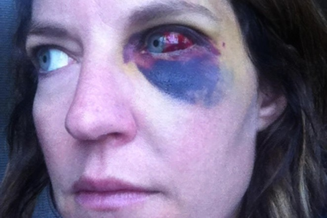 Katie Dailey's injuries after being punched by a Bend police officer. Her left lateral orbital bone, along with her left inferior orbital bone, were both broken. - COURTESY KATIE DAILEY