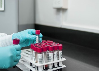 Rapid Testing Could Ease Social Distancing. But Getting the Kits to Do So? Another Story.