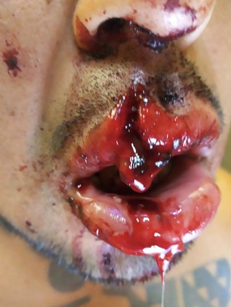 """Close up of damage caused to the face of Marqus """"Red Bear"""" Martinez by the impact of the sting ball grenade. - MARQUS """"RED BEAR"""" MARTINEZ"""