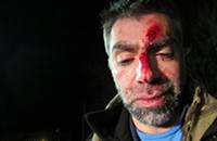 Filmmaker Usama Alshaibi Says He Was Beaten in Anti-Arab attack