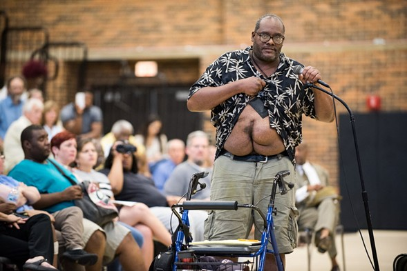 Theodore Daffin, who says he was a victim of police brutality, shows his scars during a July 12 public forum hosted by the U.S. Department of Justice at Truman College. - MAX HERMAN/FOR THE SUN-TIMES