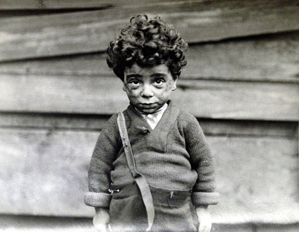 "Lewis W. Hine, Tenement Child, Handicapped in Every Way, 1910, from the series ""Hull House & Chicago"""
