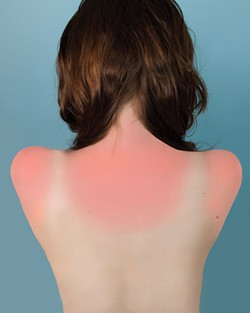 Brea Souders, Sunburn in Naples, 2010