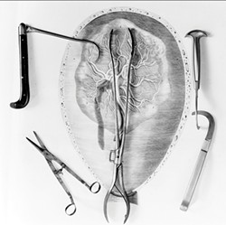 ANDREA BALDECK - Image from Andrea Baldeck's book Bones, Books and Bell Jars: Photographs of the Mütter Museum Collection of 19th-century medical artifacts.