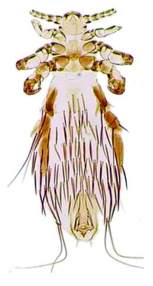 Fahrenholzia pinnata, the common louse, under a light microscope.  - VINCENT S. SMITH
