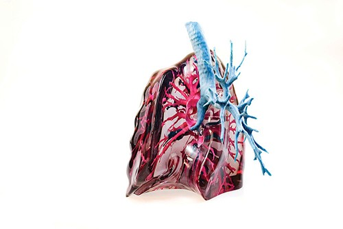 A lung model created by Mediprint for physicians at Memorial Sloan Kettering Cancer Center. - ROY GUMPEL