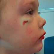 Ohio Hospital Employee Tells Little Girl That Boy Who Sliced Her Face Open Probably Just 'Likes' Her