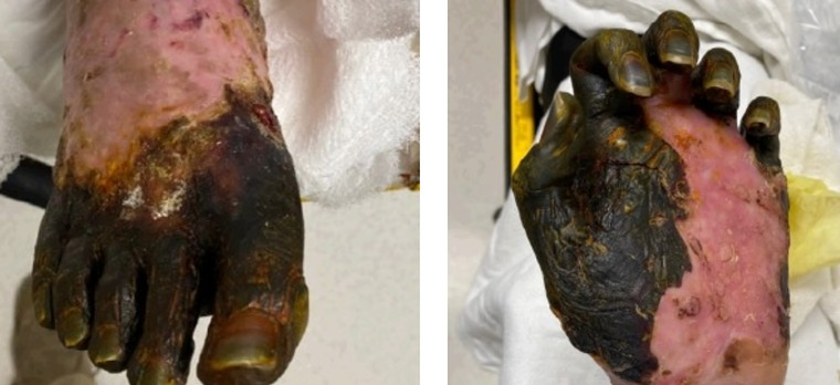 Photos of Christopher Tanner's foot and hand included in the lawsuit. - HOLLAND, HOLLAND EDWARDS & GROSSMAN, P.C.