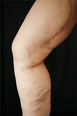JENNY PFEIFFER - Denise Stracner bears the scars of reconstructive surgery - following her weight loss.