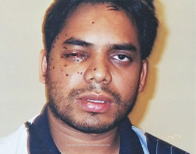 A photo of Rais Bhuiyan during his recovery from being shot in the face.