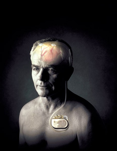 Tiny electrodes implanted in a patient's brain, attached to a pacemaker, can reduce or eliminate tremors.