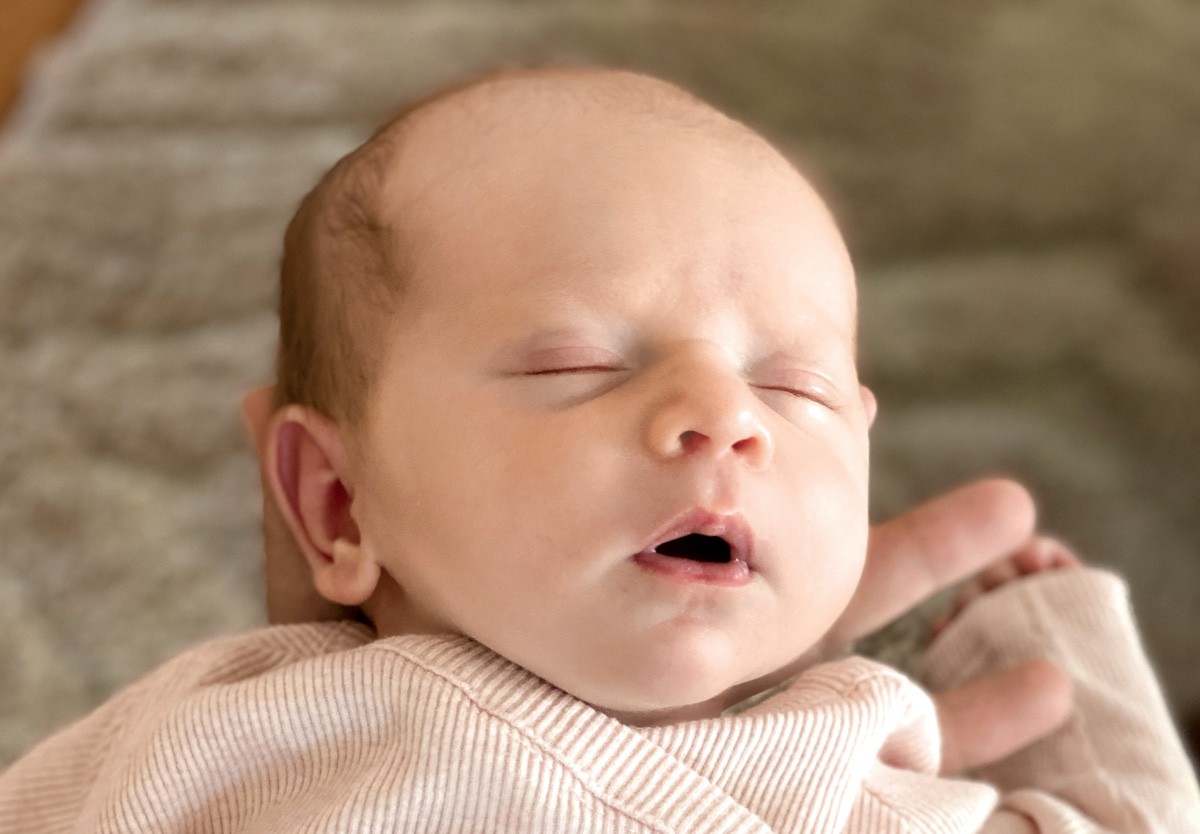 Baby skin can pretty quickly go through changes that may be unsettling to new parents.