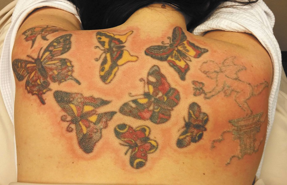 A patient getting started on the process of tattoo removal. - ADVANCED AESTHETICS PHOTO