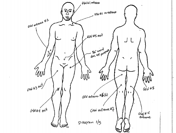 A screenshot of a diagram in the autopsy report showing where Bolton was shot.