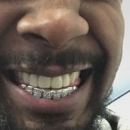 Smile, Danny Brown fixed his iconic teeth