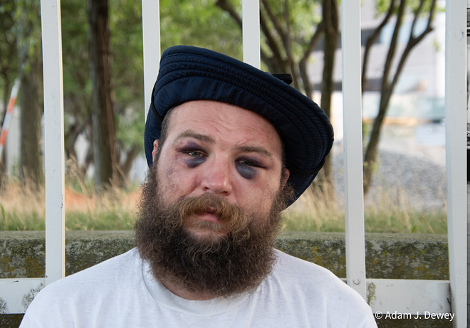 Kevin Kwart claims in a lawsuit that Detroit police brutalized him at a protest in Detroit in August 2020. - ADAM J. DEWEY