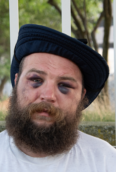 Kevin Kwart claims in a lawsuit that Detroit police brutalized him at a protest in Detroit in August 2020.