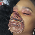 Woman shows up to Beaumont Hospital-Royal Oak with gory zombie makeup, causes a scare