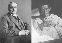 "Dr. Aloysius Alzheimer (1864-1915) and, right, his original ""Alzheimer"" patient, Auguste Deter (1850-1906)."
