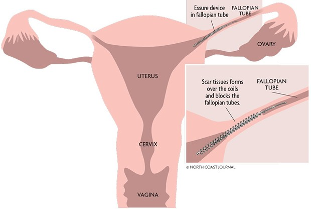 An illustration of how Essure is supposed to work. - NORTH COAST JOURNAL GRAPHIC