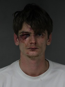 APD Chief Tom Chapman said it's believed Zoellner received some of the injuries visible in his booking photo prior to stabbing Lawson and some after. - ARCATA POLICE DEPARTMENT