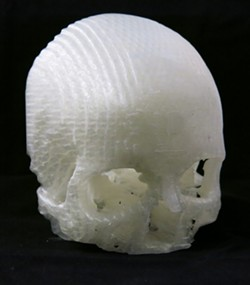 SKULL AND BONES:  The actual 3-D printed models of Scott's skull revealed the location and detail of her tumor with more precision than the MRIs and CT scans. - IMAGE COURTESY OF MICHAEL BALZER