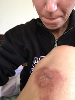 AFTERMATH:  Grover Beach resident Andrea Hansen, who has epilepsy, claims she sustained this and other injuries in a scuffle with police that occurred when she was arrested after calling 911 to report that she was having multiple seizures. - PHOTO COURTESY OF GOFUNDME