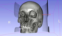PICTURE PERFECT:  In order to create the full 3-D render, Balzer had to use Photoshop for some of the more detailed work. What resulted was an accurate, full-scale model of Scott's skull (including the tumor) made out of layered plastic. - IMAGE COURTESY OF MICHAEL BALZER
