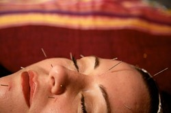 GET THE POINT? :  Acupuncture is one of several treatments available at the new Savvi Skin and Body Studio. - PHOTO BY JESSE ACOSTA
