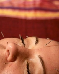 GET THE POINT? :  Acupuncture is one of several treatments available at the new Savvi Skin and Body Studio.