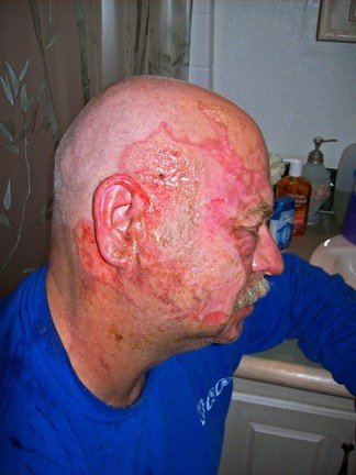 SULFUR BURNS :  Steve Swader survived a blast of sulfur to his face, neck, and hands in 2008 and credits the onsite health and safety shift specialist team with his quick recovery. - PHOTOS COURTESY OF STEVEN SWADER
