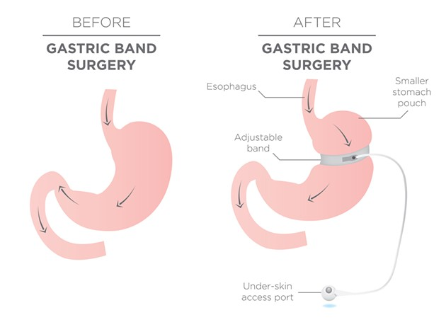 Before and After Gastric Band for Weight Loss - BIGSTOCK