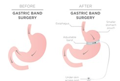 Weighed down: Surgeries remain a viable yet extreme option in weight loss and management
