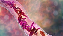 University of Florida researchers get sickle cell therapy grant