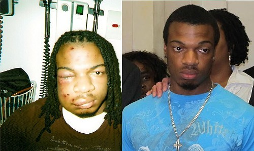 At left is Jordan Miles the day after his encounter with Pittsburgh Police and Jordan Miles in 2012