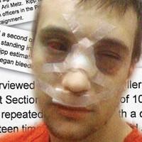 David Kipp after his jailhouse beat-down.