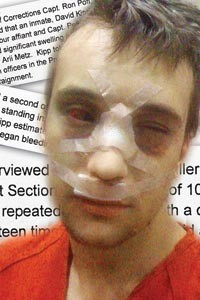 David Kipp after his jailhouse beat-down. - PHOTO ILLUSTRATION BY LISA CUNNINGHAM