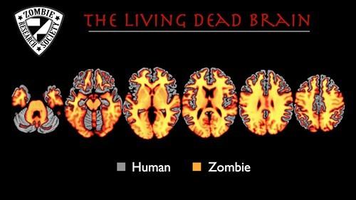 ZombieBrainChart.jpg