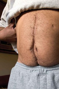 The scars left on Williams' abdomen after being shot