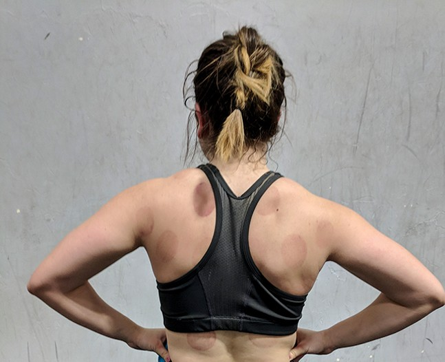 The purple marks caused by cupping therapy