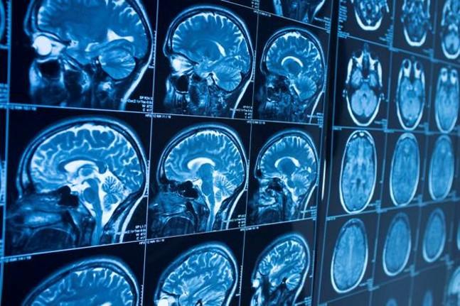 air-pollution-brain-health.jpg