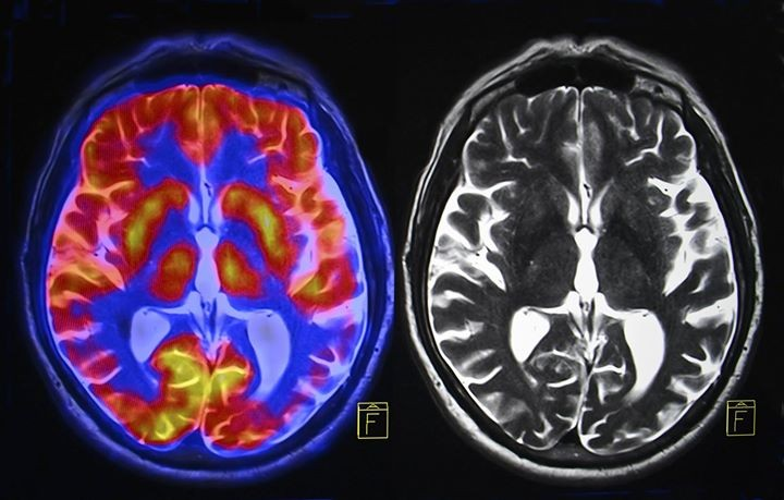 The Criminal Brain The Neuroscience Of Psychopathy At Alberta Rose