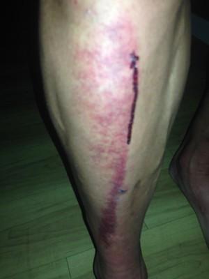 A close-up of Randy Murdick's injured right leg. - COURTESY RANDY MURDICK