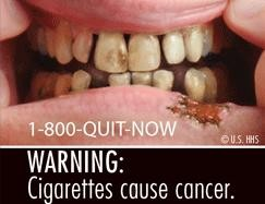 2. Canker sore from hell.