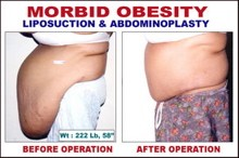 ...Oh, and that photo at the top of this post? I DID NOT lift it from the good folks at BodyAesthetic. It belongs to this guy. (Really! I found it here.) - WWW.COSMETICSURGERYBP.NET