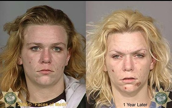 Are side by side photos like these an exaggeration? - FACESOFMETH.US