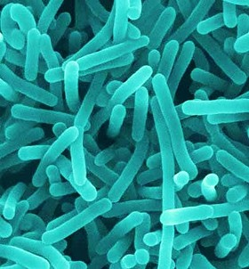 There's a high proportion of these intestinal bacteria, Firmicutes, in people who have a high-fat, high-sugar diet. - IMAGE VIA
