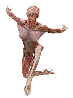 """The lawsuit conjures up images of a """"Body Worlds"""" exhibit."""